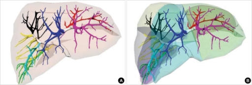 Surface model of the portal vein, which is differently colored according to the segmental branches (A). Surface model of the liver, which is divided into models of the hepatic segments (B).