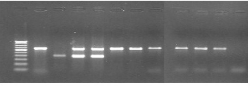 PCR for amplification of cfp 10 and esat 6 of RD1. Lane-1 – Molecular weight marker (100 bp ladder). Lane-2 – M. tuberculosis H37Rv, showing only 652 bp (RD1). Lane-3 – M. bovis BCG showing only 386 bp. Lane-4 & 5 – Clinical isolates showing 652 bp & 386 bp extra amplicon (moaA3). Lane-6 to 11 – Clinical isolates showing 652 bp only. Lane12 – Negative control.