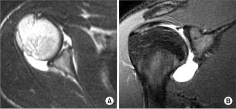 MRI findings showing the Bankart lesion (A) and the superior labrum anterior to posterior lesion (B).