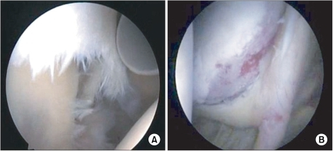 Arthroscopic image of the combined Bankart and superior labrum anterior to posterior lesion showing (A) inferiorly displaced superior labrum with significant fraying (right shoulder, from posterior viewing portal) and (B) medially displaced superior and anteroinferior labral complex (right shoulder, from anterior working portal).