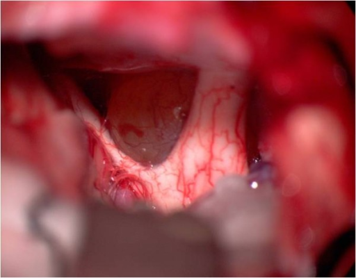 Intraoperative view from the right side. The cystic lesion (Rathke's cleft cyst) can be detected behind the optic nerves.