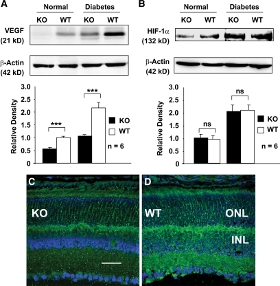 Analysis of VEGF and HIF-1α expression in normal and diabetic conditional VEGF KO mice. A and B: Immunoblotting analysis for VEGF (A) and HIF-1α (B) in retinas from conditional VEGF KO mice and WT controls 2 months after diabetes. C and D: Confocal microscopic analysis of immunostained retinas for VEGF expression (green) in conditional VEGF KO mice and WT controls subjected to a diabetic stress. Blue: nuclear staining (DAPI). Scale bar equals 40 μm. ONL, outer nuclear layer; INL, inner nuclear layer. Error bar: SEM. ***P < 0.001. ns, not significant. VEGF expression was significantly reduced in the retinas of conditional VEGF KO mice under normal or diabetic conditions. Although diabetes upregulated HIF-1α, no significant change in the levels of retinal HIF-1α was observed in diabetic conditional VEGF KO mice. (A high-quality digital representation of this figure is available in the online issue.)