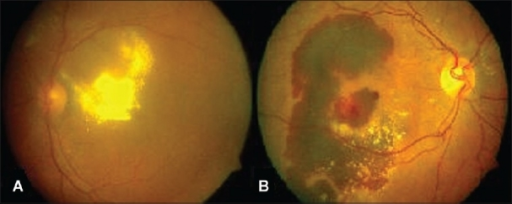 (A) Exudative pattern with extensive intraretinal lipid deposits in the macula. (B) Hemorrhagic pattern with large subretinal hemorrhage extending to the centre of the macula