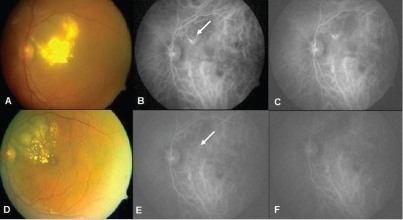A 68-year-old male presented after receiving three injections of intravitreal bevacizumab elsewhere with no response and further decrease in vision. (A) Initial visit shows intraretinal lipid deposits involving the fovea. Visual acuity 20/80. (B and C) Early and late ICGA shows saccular dilatation extrafoveal in location (arrow). (D) Seven months following laser, clinical photograph shows significant decrease in intraretinal lipid deposits and visual acuity improved to 20/30. (E and F) Post-treatment ICGA shows regression of the polyps
