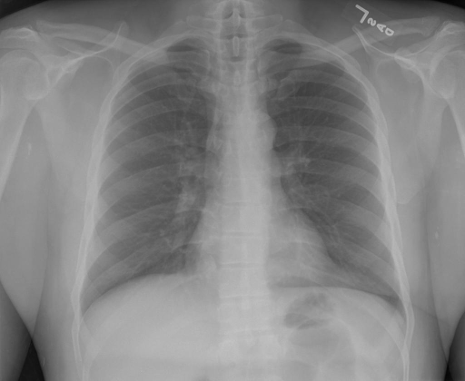 PA and lateral views of chest performed on XXXX at XXXX.