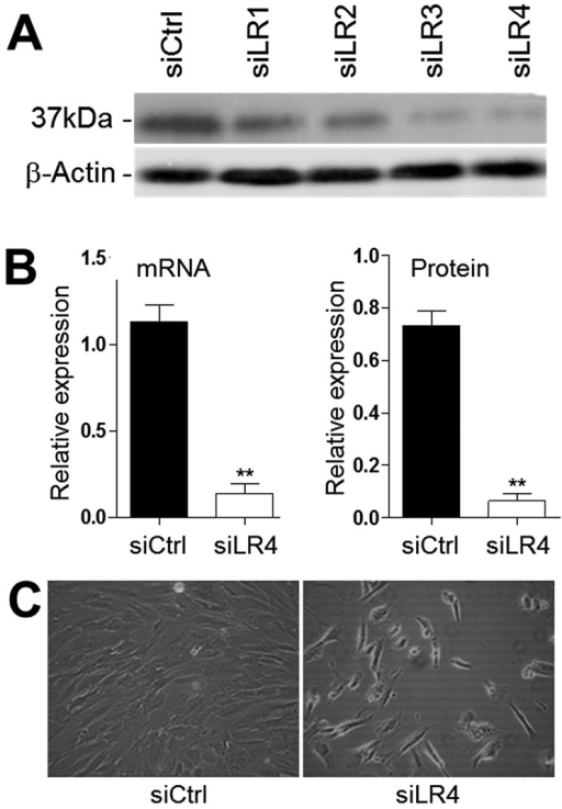 Knockdown of 37/67LR expression in HIEC cells.(A) Representative Western blot analysis showing the expression level of 37/67LR following a period of 48h after transfection of the 4 predesigned siRNA sequences (siLR1-4) and control si (siCtrl). All sequences induced a significant reduction of 37/67LR, but siLR4 was most efficient. (B) Representative graphs showing relative amounts of 37/67LR mRNA by qPCR and protein by Western blot in control (siCtrl) and knockdown (siLR4) HIEC cells. Relative amounts were obtained from data normalized with RPLPO (mRNA) and β-actin (protein) (mean ± SEM, n=3, **: p<0.0005). (C) Phase contrast micrographs of HIEC cells taken 48h after transfection with siCtrl and siLR4.