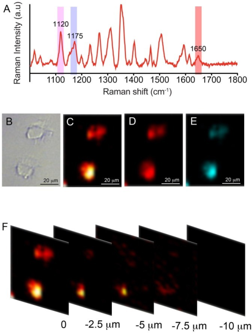 In vitro SERS mapping results with three SERS nanotags.(A)- SERS spectra from the cell depicting the multiplexing peak from each nanotag bound to corresponding biomarker on the cell surface and (B)-bright field image of the cell. (C–E) shows the SERS intensity map image demonstrating the expression and relative distribution of the biomarkers- TGFβRII, CD44 and EGFR on the cell surface bound to the antibody conjugated SERS nanotags, Cy5, MGITC and Rh6G respectively. SERS mapping was carried out at 1120 cm−1 peak of Cy5, 1175 cm−1 of MGITC and 1650 cm−1 of Rh6G. (F) SERS intensity map images of the z-series scan at different depth for the Cy5 nanotag (bound to TGFβRII biomarker). Mapping was carried out at a depth interval of 2.5 μm.