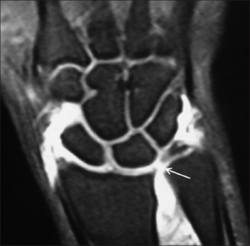 TFC tear in a 21 year old male with wrist pain of 1 year duration. Coronal FS T1W arthrogram image shows a central TFC tear (arrow)