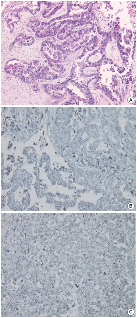 (A) Hematoxylin and eosin staining of sample. (B) BRCA1 immunohistochemistry (IHC) (negative staining). (C) BRCA2 IHC (focal positive staining). Agent: BRCA1 (Abcam ab16870), BRCA2 (Abcam ab110967). Evaluation: Nuclear staining of the tumor is scored as either 2 (strong, normal), 1 (weak), or 0 (negative, abnormal) compared with the corresponding internal control.