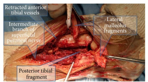 Transfibular approach to the lateral distal tibia. Note the intermediate branch of the superficial peroneal nerve as well as the anterior tibial vessels. The flipped-over lateral malleolus still retains the posterior (peroneal artery derived) blood supply.