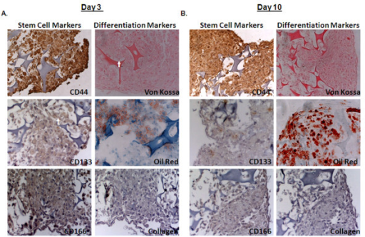 Differentiation of hMSC spheroids cultured under MG conditions. (A) Immunohistochemistry analysis of spheroids for stem cells makers CD44, CD133, CD166, and differentiation markers von Kossa, oil red O, collagen-II showed that day 3 spheroids retained CD44, CD133, and CD166 expression and lacked differentiation markers. (B) Day 10 spheroids retain CD44 expression and were positive for oil red O staining. Images shown are representative of 4 individual experiments.