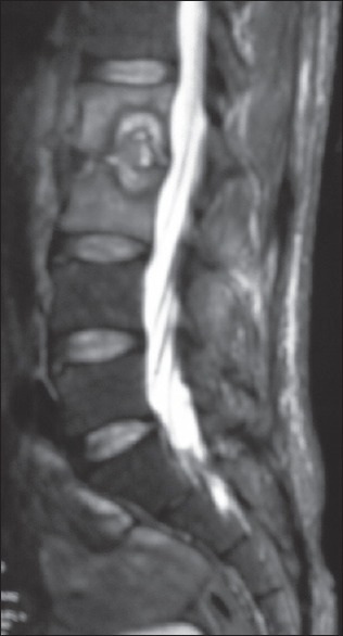 Magnetic resonance imaging of the lumbosacral spine showing Pott's spine at the L2-3 vertebrae
