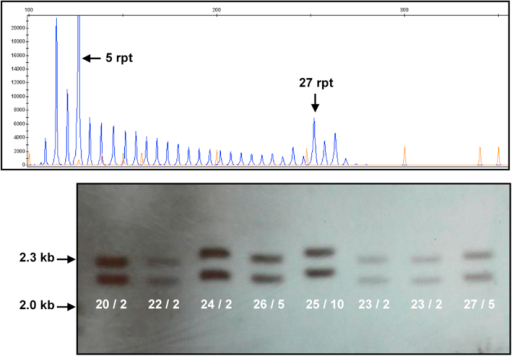 Top figure: RP-PCR showing the case with heterozygous 27 repeats on 1 allele, 5 repeats on the other. Bottom figure: Southern blot confirmation (with BamHI/EcoRI double-digest) of different repeat sizes from 20 to 27 showing the Southern blot appearance of different fragments. Numbers = number of C9orf72 repeats. Number of repeats was also confirmed by fluorescent PCR of the C9orf72 repeat and fragment analysis. Abbreviations: PCR, polymerase chain reaction; RP-PCR, repeat-primed polymerase chain reaction.