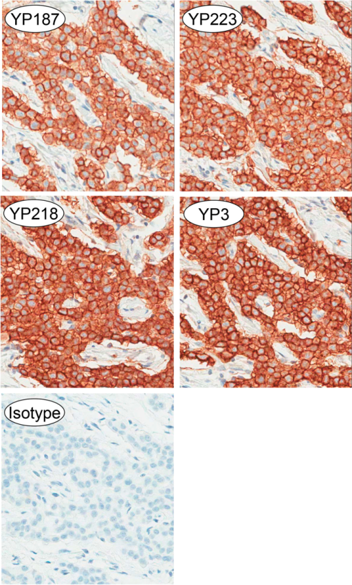 Immunohistochemistry with patient mesothelioma tissue sections stained with either an isotype control antibody or the anti-mesothelin antibody as indicated.