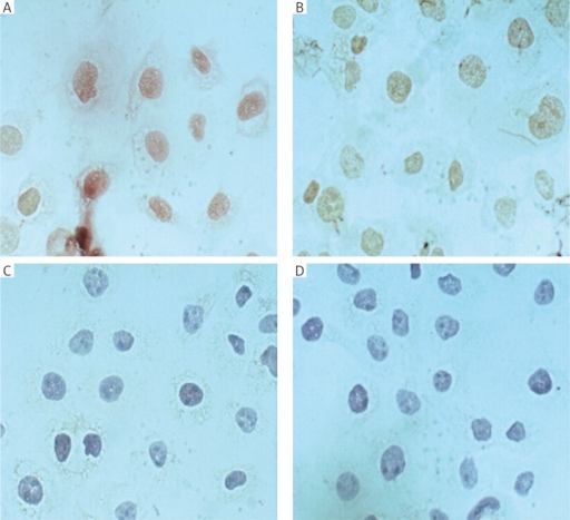 Changes in PCNA expression after treatment of Caski and HeLa cells with 20 µmol/l β-sitosterol for 24 hours: A, C) Caski and HeLa cells in control group; B, D) Caski and HeLa cells after treatment with β-sitosterol