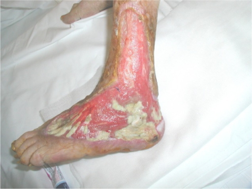 Ulcers of the lower limb at baseline, on admission.