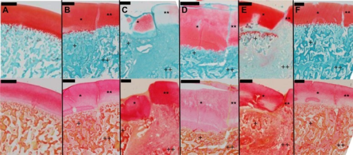 Histological analysis. Safranin-O/Fast Green (top row) and Picrosirius Red (bottom row) staining of representative osteochondritis dissecans–like lesions on day 14. (A) Sham, (B) no scaffold, (C) PCL, (D) fenPCL, (E) CM, and (F) fenCM. *Progeny cartilage; **parent cartilage; +progeny bone; ++parent bone. Fibrous connective tissue is evident at the boundary of all scaffold-containing groups. Scale bar = 1 mm. CM, collagen membrane; fenCM, fenestrated CM; fenPCL, fenestrated poly(∊-caprolactone); PCL, poly(∊-caprolactone).