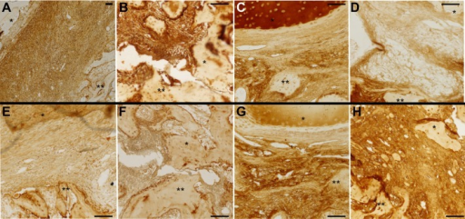 Immunohistochemical analysis. Immunhistochemistry for (A-D) collagen type 2 and (E-H) collagen type 1 at 14 days postoperatively. (A and E) full nanofibrous poly(∊-caprolactone) (PCL) membrane, (B and F) fenestrated PCL, (C and G) full collagen membrane, (D and H) fenestrated collagen membrane. *Progeny bone/cartilage; **parent bone. Scale bar = 100 μm.