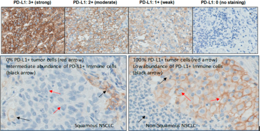Positive PD-L1 membrane staining in NSCLC tumor tissues illustrating intensity grades (top, ×20) and PD-L1 tumor scores (bottom, ×40). NSCLC indicates non–small cell lung cancer; PD-L1, programmed cell death 1 ligand 1.