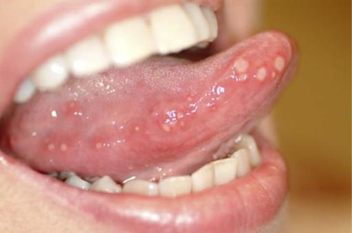 Úlceras orales