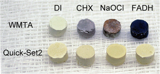 Resistance to discoloration.Color changes in white ProRoot MTA (WMTA) and Quick-Set2 after the set materials were incubated in deionized water (DI), 2% chlorhexidine (CHX), 8.25% sodium hypochlorite (NaOCl) and 10% formaldehyde (FADH) for 7 days.
