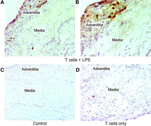 Activated arterial DCs are capable of stimulating T cells. Temporal artery–SCID mouse chimeras were generated by implanting normal temporal arteries from HLA-DRB1*0401+ donors. 6 d after implantation, the chimeras received 10 μg LPS or PBS i.v., and 30 h later, 5 × 106 alloreactive human T cell clones specific for HLA-DRB1*0401 or T cell lines derived from arterial tissue of patients with GCA were adoptively transferred into the mice. Arterial grafts were explanted and embedded in OCT. To locate human T cells in the arterial grafts, frozen tissue sections were immunostained with anti-CD3 Ab. One experiment representative of five is shown. CD3+ T cells (brown) were found in the arteries explanted from the chimeras that had been treated with LPS and had received the T cells. Tissue-infiltrating T cells accumulated along the adventitia–media junction (A and B). In the absence of LPS pretreatment, human T cells were rarely detected in the arteries (D). Grafts from animals that had received neither LPS nor T cells were free of human T cells (C). Original magnification, 200 (A, C, and D) and 400 (B).