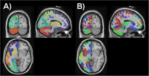 Random parcellations.A: Sections through the AAL parcellation of the test brain with different colors indicating different parcels. B: a random parcellation of the same test brain.