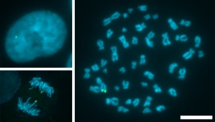 HCT116 cells with a single marked chromosome. Interphase (top left) and anaphase (bottom left) cells and a chromosome spread (right) with LacIGFP (green) bound to multiple copies of lacO integrated at a single chromosomal locus. DNA is stained with DAPI (blue). Bar, 10 µm.