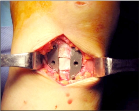The corticocancellous wedge piece (the medial calcar portion of the allograft hemi-femoral head) was inserted into the area between the plates.