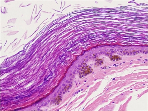 Mature squamous epithelium