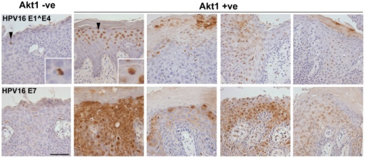 Early gene expression in VIN.Expression of the early genes 16E1∧E4 and 16E7 in a representative AKT1 negative (AKT1 −ve) and AKT1 positive (AKT1 +ve) VIN. Note the increased 16E7 expression in AKT1 positive VIN, and the change of 16E1∧E4 expression from perinuclear low expression in AKT1 negative VIN to high nuclear expression in AKT1 positive VIN (see insets). Bar 50µm.