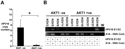 Copy number and integration analysis of VIN.A. Copy number analysis of HPV16 DNA in AKT1 −ve (p = 5) and AKT +ve (p = 6) VIN. *, p = 0.006 (unpaired T-test). B. PCR of DNA for a region encompassing the HPV16 E1 and E2 genes in the 14 VIN, and the relationship with AKT1 loss in the VIN. L. 250 bp DNA ladder, W, no DNA control.