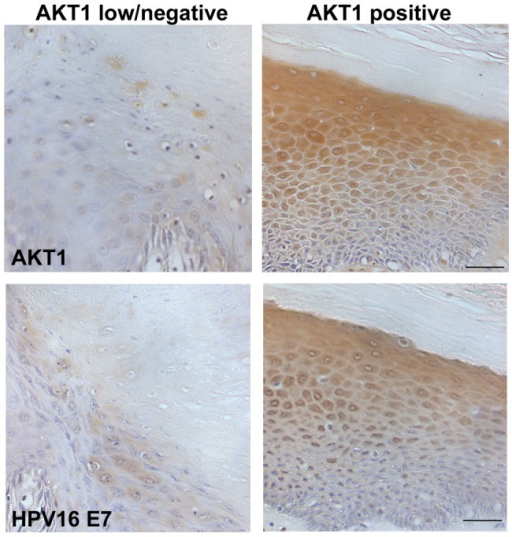AKT1 expression and HPV16E7 expression in vSCC cohort.Representative data of immunohistochemistry of the archive vSCC cohort. AKT1 expression and HPV16E7 expression were analysed by immunohistochemistry. Loss of AKT1 associated with low HPV16E7 levels, while maintained AKT1 correlated with high HPV16E7 expression. Bar 50 µm.