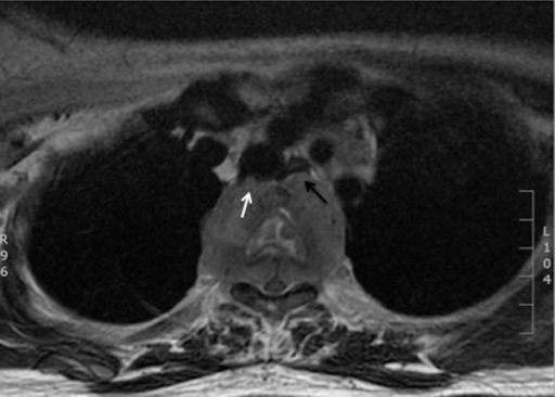Axial T2 fat suppressed MR image at the level of T3 showing a paravertebral mass extending into the spinal canal causing spinal cord displacement and compression. The mass has also indented the posterior wall of the trachea (white arrow) and displacing the esophagus anteriorly (black arrow).