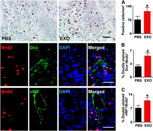 Exosomes increase neurogenesis and angiogenesis in the ischemic boundary zone (IBZ). Compared with phosphate-buffered saline (PBS) treatment, the 5-bromodeoxyuridine (BrdU)-labeled cells in the IBZ were significantly increased after exosome treatment (A row). Representative micrographs show the double-stained cells with doublecortin (DCX) and BrdU (B row) or von Willebrand factor (vWF) and BrdU (C row). Compared with PBS treatment, exosome treatment significantly increased the percentage of BrdU–DCX stained cells (B) and BrdU–endothelial cells stained cells in the IBZ (C) in rats after stroke, respectively. *P<0.05, mean±s.d., n=6/group. Scale bar, 50 μm. DAPI, 4′,6-diamidino-2-phenylindole.