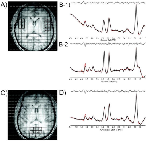 Axial T1-weighted images depicting MRSI grid with voxels positioned in the left and right temporal cortex (A) and in the parieto-occipital cortex (POC; C). Also shown are corresponding J=0.0 Hz sample spectra from voxels in the left (B-1) and right (B-2) temporal cortex and in the POC (D).