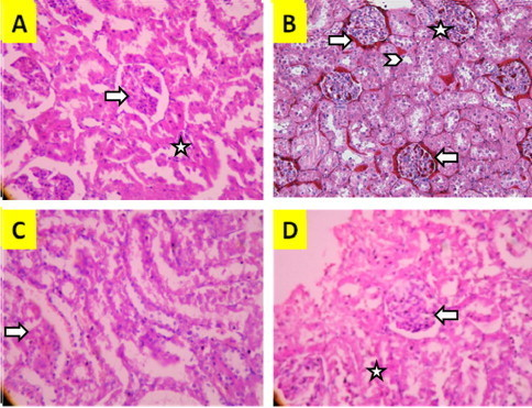 The effect of EELU treatment on morphological changes assessed by histological examination of the renal cortex of rats by H&E stain (×100). Representative histological images (A) sham group; regular renal tissue with glomeruli (arrow) and tubuli (☆). (B) RIR group, cellular vacuolisation (arrowhead), congestion (arrow), and necrosis (☆); (C) EELU 200 mg/kg, reduced congestion (arrow); and (D) EELU 400 mg/kg showing reduced glomeruli necrosis (arrow) and tubular dilation (☆).