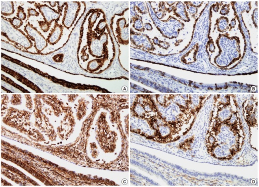 Immunohistochemically, the tumor cells show positivity for Cam5.2 (A), cytokeratin 7 (CK7) (B), vimentin (C), and CD10 (D). In contrast, the epithelial cells of the fallopian tube (lower left) show strong positivity for Cam5.2 and vimentin, variable positivity for CK7, and negativity for CD10.