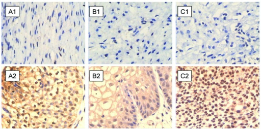 Immunohistochemical staining of (A) lymphotoxin β receptor (LTβR), (B) phosphorylated (p)-p65, and (C) p52 proteins in (A1–C1) healthy bladder mucosal and (A2–C2) chronic cystitis tissues. All three proteins are negatively stained in healthy bladder mucosa tissues and show strong positive staining in chronic cystitis tissues (×400).