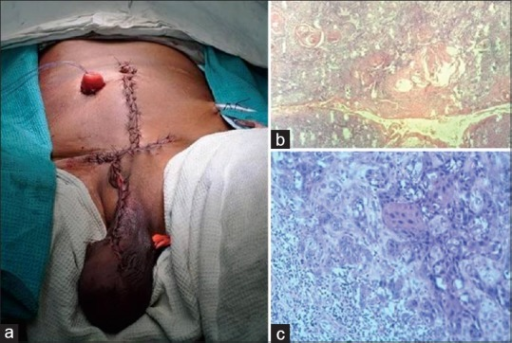 (a) Postoperative picture following radical urethrocystoprostatectomy with en-bloc excision of suprapubic cystostomy (SPC) tract and wide local excision of scrotum; (b) H and E, ×10 showing primary squamous cell carcinoma (SCC) of urethra with keratin pearls; (c) H and E, ×20 showing foci of SCC in the SPC tract