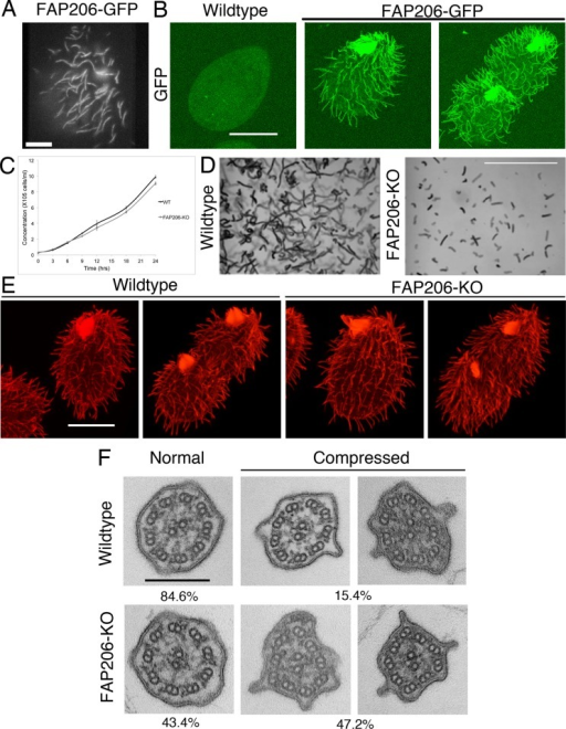 FAP206 localizes to the ciliary axoneme, and knockout of FAP206 results in cilia-related defects. (A) TIRF image of a live cell expressing FAP206-GFP under the native promoter. (B) A wild-type (negative control) cell (left) and a cell expressing FAP206-GFP under the native promoter (right) extracted with Triton X-100, fixed with paraformaldehyde, and imaged for GFP using a confocal microscope. (C) Culture growth rates for a wild-type CU428 and an FAP206-KO strain. Each data point represents an average for three independent experiments. (D) Paths of swimming wild-type and FAP206-KO cells recorded for 1 s. The average swim velocities were 170 μm/s for the wild type and 50 μm/s for FAP206-KO. (E) Immunofluorescence images of tubulin for wild-type and FAP206-KO cells. For each genotype, an interphase (left) and a dividing cell (right) are shown. (F) Classical TEM images of cilia cross-sections that are either circular (left) or compressed (right). The percentages represent fractions of either circular or compressed axonemes (n = 52 for wild type, n = 48 for FAP206-KO). Scale bars, 20 μm (A, B, and E), 1 mm (D), 0.2 μm (F).