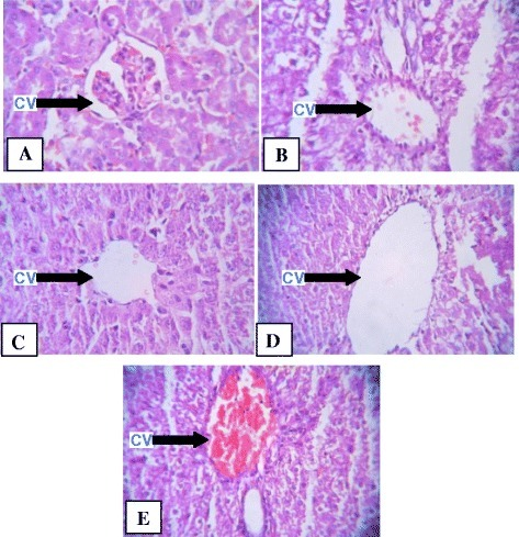 Effect of methanolic extract ofRumex vesicariusL on acute liver injury induced by CCl4.A: (control): liver section with normal structure and architecture. B: (CCl4 treated): showing extensive area of necrosis, profound inflammation and congestion. C: (pretreatment with silymarin): reduced inflammation and degenerative changes. D: (pretreatment of extract at low dose of 100 mg/kgbw): reduced inflammation, degenerative changes. E: (pretreatment of extract at low dose of 200mg/kgbw): reduced inflammation, degenerative changes. cv: central vein