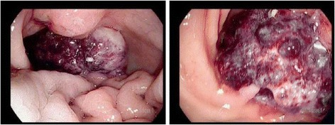 Endoscopic images of gastric tumor