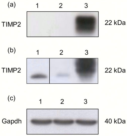 TIMP2 protein expression in B16-F10 cells assessed by Western blot in.(a) cell lysates, (b) media from cells. (c) Control Gapdh protein level in cell lysates. Lines: 1- B16-F10 cells, 2- B16-F10 cells transfected with AP-15/DOPE:pGFP, 3- B16-F10 cells transfected with AP-15/DOPE:pTIMP2.