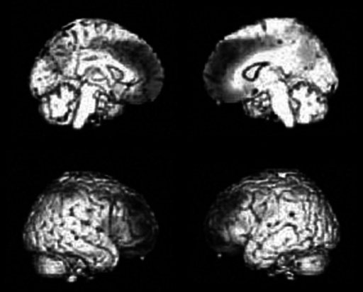 More increased PiB uptake in PiB positive DLB groups compared to PiB negative DLB group groups. In the PiB positive group, PiB accumulation in the frontal, parietal, and posterior cingulate and precuneus cortices were significantly larger than those in the PiB negative group