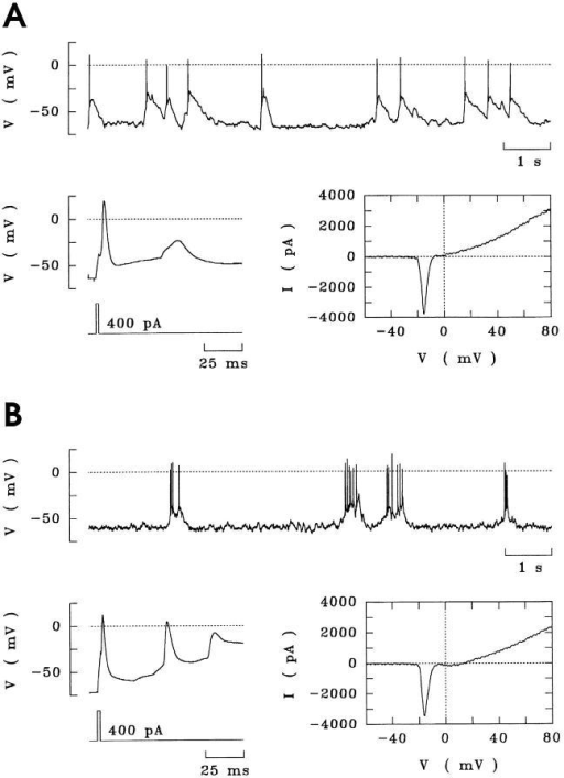 Spontaneous bioelectric activity of hippocampal neurons  with or without IFN-γ treatment.  (A) Spontaneous firing of action  potentials persisting over at least 10  min by an untreated neuron (upper  trace). Additional suprathreshold  current pulses elicited single action  potentials (lower trace, left). Depolarising ramps demonstrated sodium  and potassium currents, downward  and upward deflections, respectively (lower trace, right). (B) Hippocampal neuron treated with  IFN-γ (100 U/ml) for 3 d.