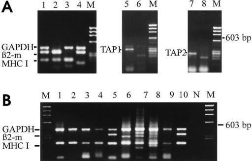 Restriction site analysis of amplified PCR-fragments and  MHC class I heavy chain induction by TNF-α. (A) PCR-fragments amplified from IFN-γ plus TTX treated individual neurons, digested by restriction enzymes selected from the published sequence. PCR-fragments  for GAPDH (428 bp) cut into 324 bp and 104 bp, for β2-microglobulin  (332 bp) into 206 bp and 126 bp, for MHC class I heavy chain (198 bp)  into 160 bp and 38 bp. PCR-fragments for TAP1 (300 bp) cut into 194  bp and 106 bp. PCR-fragments for TAP2 (264 bp) cut into 192 bp and  72 bp. All analyzed PCR-fragments were in agreement with the published sequences. (B) Gene transcripts for GAPDH, β2-microglobulin and  MHC class I heavy chain coamplified from individual neurons (lanes 1 to  10) treated for 72 h with TNF-α. Lane N and lane M show negative control of PCR-amplification and molecular weight marker ΦX174/Hae III,  respectively.