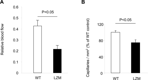 Neovascularization capacity in an unilateral hindlimb ischemia model using LZM and WT mice.(A) Perfusion is measured as relative Laser Doppler-derived blood flow (n≥5). (B) Number of CD31+ capillaries / mm2 in ischemic hindlimbs of LZM versus WT littermates mice (n = 12–18 sections from 4–6 mice / group).