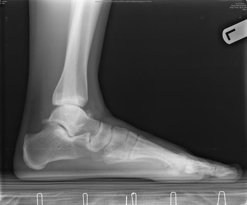 Lateral ankle X-ray showing large talar osteophyte in p | Open-i
