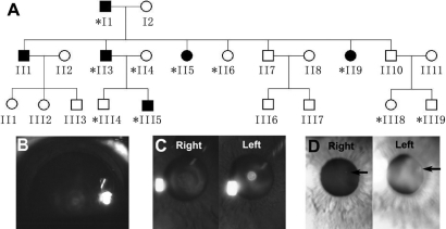 A Chinese autosomal dominant cataract family. A: Pedigree of a three-generation Chinese family with autosomal dominant cataract is shown. The asterisk indicates the family members whose DNA samples were analyzed. B: The lens image was taken from subject III5 following pupillary dilation. Both lenses showed the lamellar opacity within the fetal nucleus with a clear peripheral cortex. C: Subject II3 displayed similar lamellar opacity in the right lens and a central dense opacity with sharp margins in the left lens. D: Both images were from subject II5. A single spherical opacity (indicated by black arrows) was evident in the left lens, and only a smaller dot was found in the right lens.